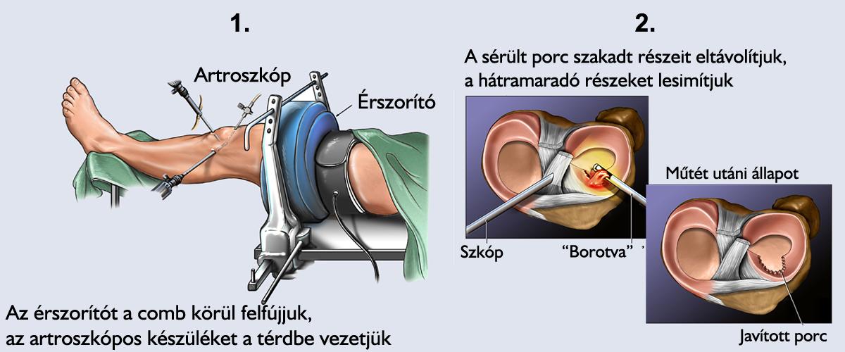 egy ulnarízület kezelése sérülés után