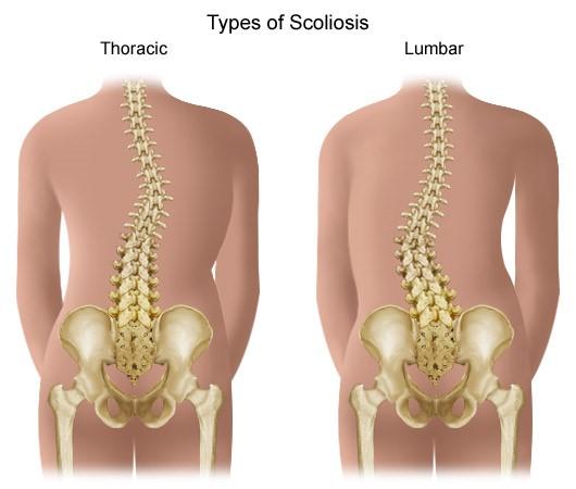 a térd medialis artrózisa