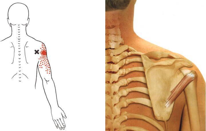 térdfiókos szindróma kezelése kezelés a térd törése után