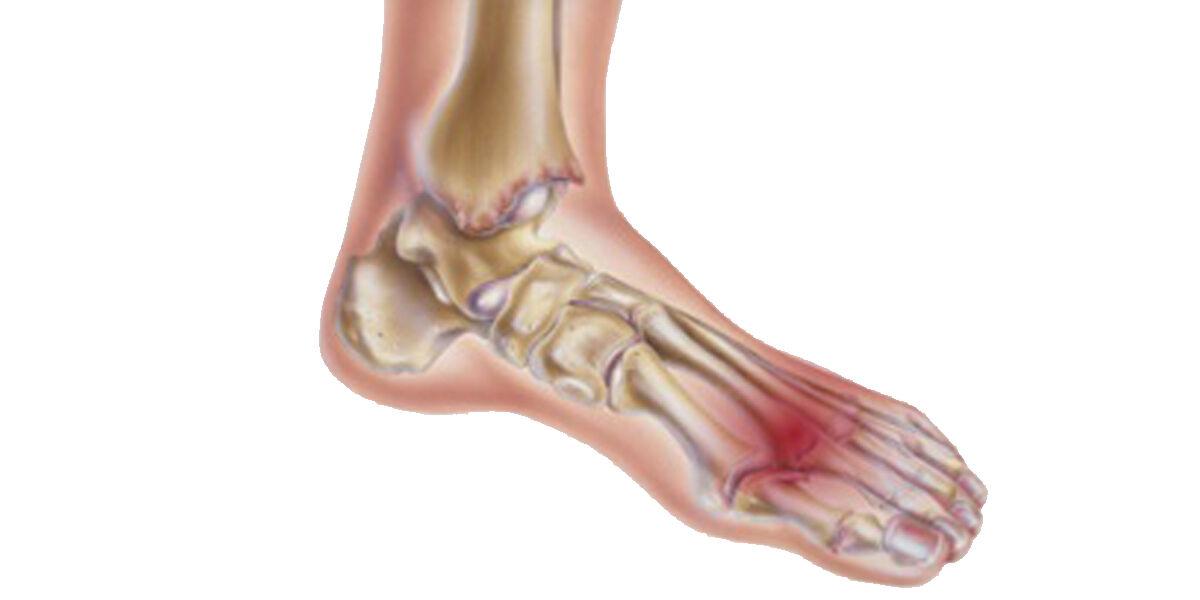 fájdalom, ha séta ad a csípőízületre diffúz kötőszöveti betegségek