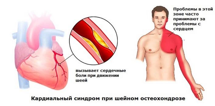 gyulladásgátló kenőcsök a nyaki gerinc osteokondrozisához