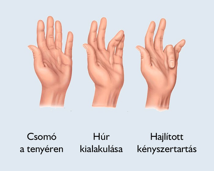 halasszallo.hu -Traumatológia, kézsebészet