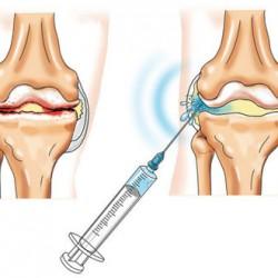 Injekciók lábfájdalom ellen. Injekciós gyógyszerek az ízületi fájdalom kiküszöbölésére