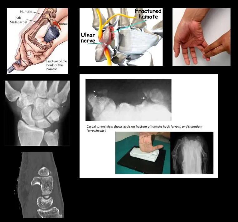 csukló ligamentum betegség
