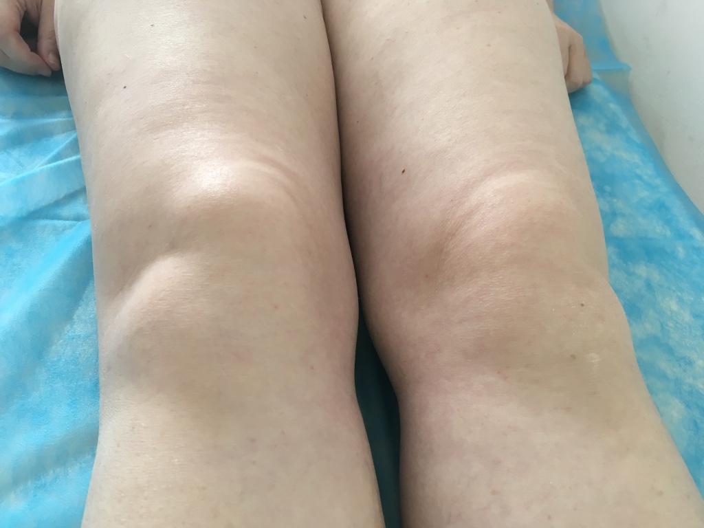 hó artrozis kezelése