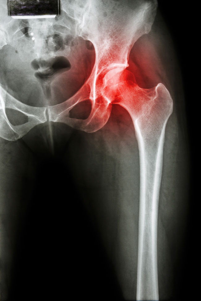 a boka latin artrózisa