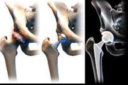 éles fájdalmak a lábízületben