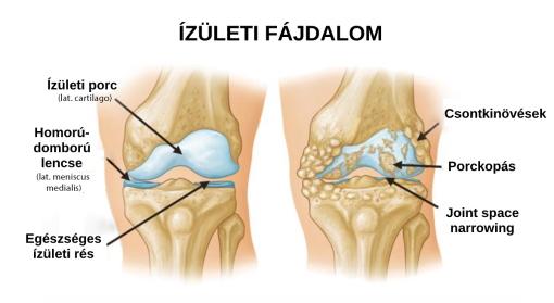 ízületek fáj és repedés cseppek a csípőízület ízületi gyulladásáért