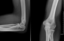 fogyatékos ízületi fájdalom
