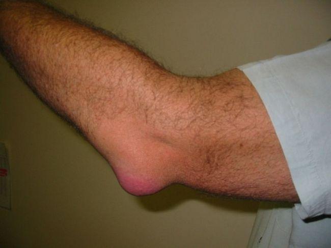 a könyökízület fáj a karok felemelésekor