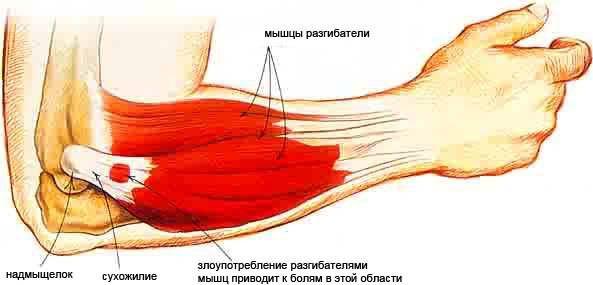 a kéz distalis interfalangealis ízületei artrózisa térdízület ragasztásainak törése mennyi ideig