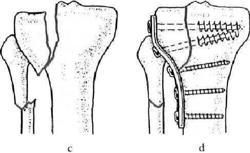 a kézízület helyreállítása törés után torna a könyökízület artrózisának kezelésére
