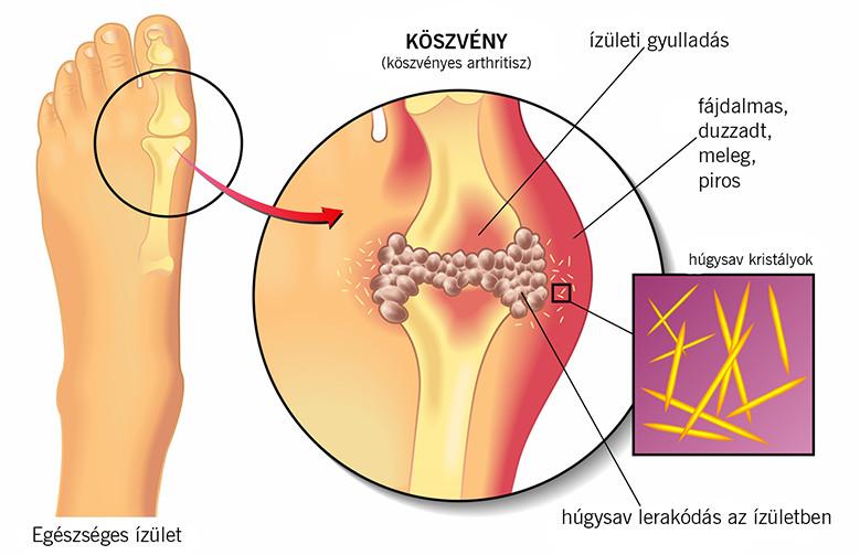 a lábujjak artrózisa és a kezek kezelése