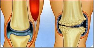 a térd második fokú artrózisa
