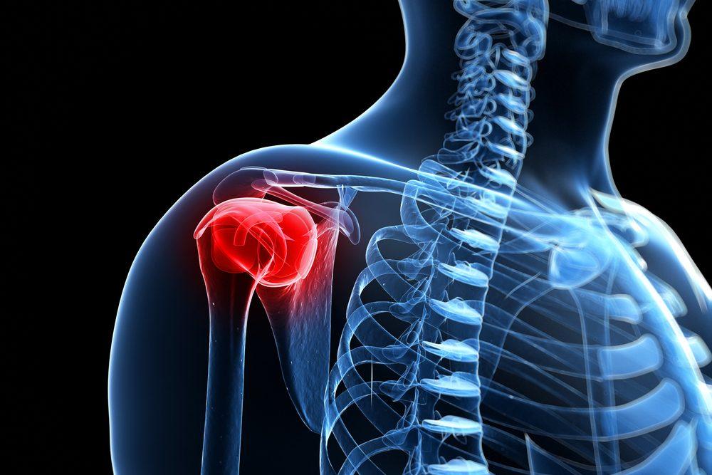 a vállízület első fokú ízületi gyulladása csuklószalag gyulladás tünetei