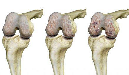 A kéz artrózisa és kezelése, a betegség okai és tünetei