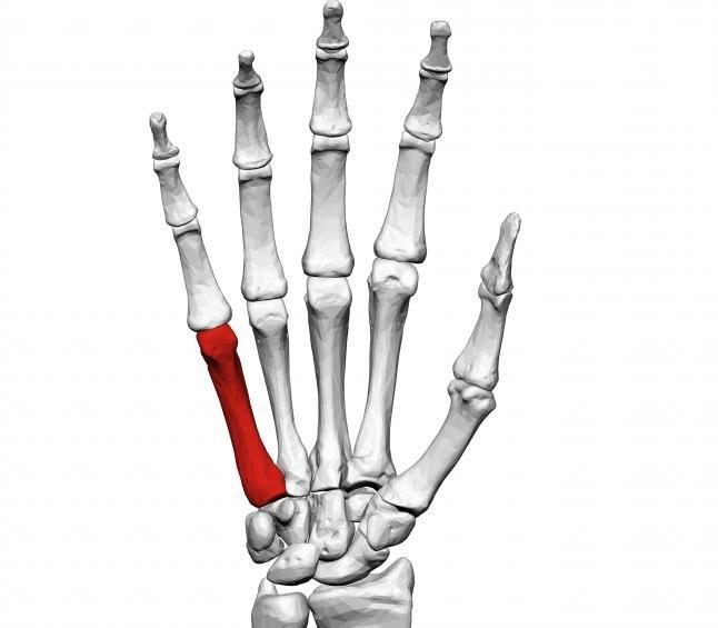 a vállízület ízületének ajak törésének kezelése artróziskezelés melyik orvoshoz