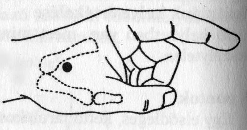 akupresszúra könyökfájdalom esetén
