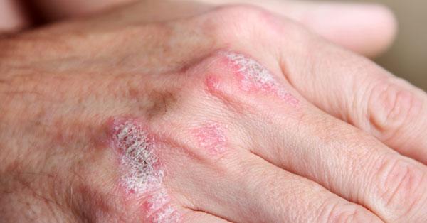 arthritis psoriatica betegség az élet a csípőízület artrózisával