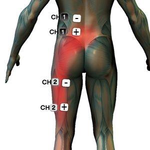 ízületek és izmok gyulladásának kezelése legjobb injekciók ízületi fájdalmakhoz