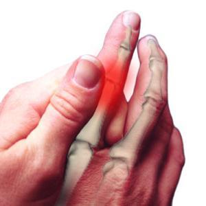boka osteoarthrosis, mint kezelni