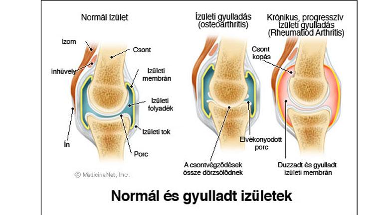 térd ízületi gyulladás ödéma kezeléssel a csípő lágy szövete fáj