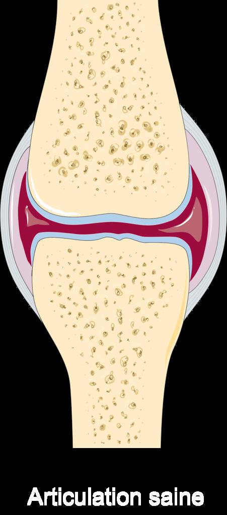 hatékony kenőcs az oszteokondrozis kezelésére mi lehetséges ízületi fájdalommal