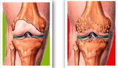 A térdfájdalom három tipikus esete - fájdalomportáhalasszallo.hu