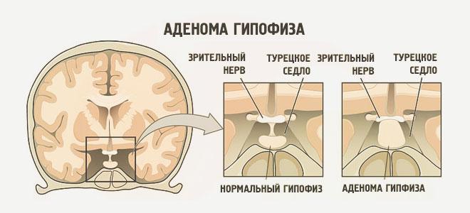 Rejtett betegségek a hízás hátterében