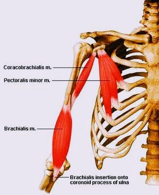 brachialis arthritisz