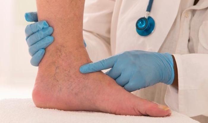 láb boka betegség reggel fájdalom ízületek