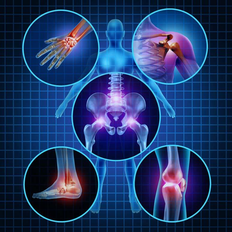 Ízületi gyulladás (reumatoid artritisz)