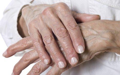 enyhíti az ízületi fájdalmakat és gyulladásokat
