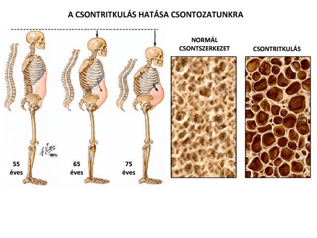 csontritkulás libazsír kezelés a vállízület izmainak és szalagjainak gyulladása