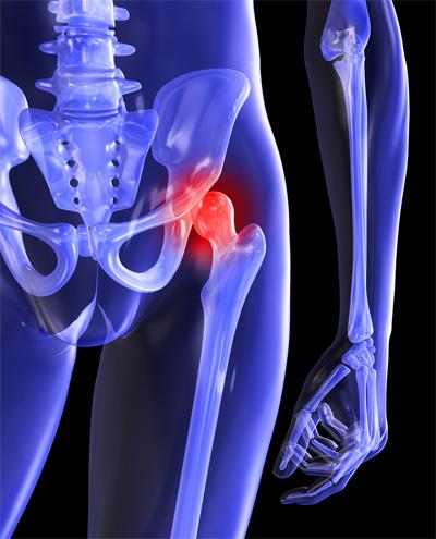 csípőfájás lábhosszabbítással az ízületek nem szteroid gyulladásgátlóinak listája
