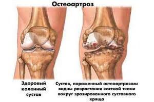 Sérülési kezelés és szövet. A lábak ízületeinek betegségei