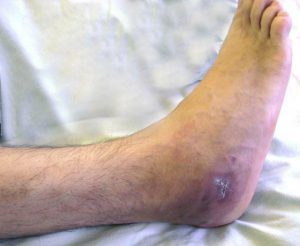 Dr. Diag - Acut pyogen osteomyelitis