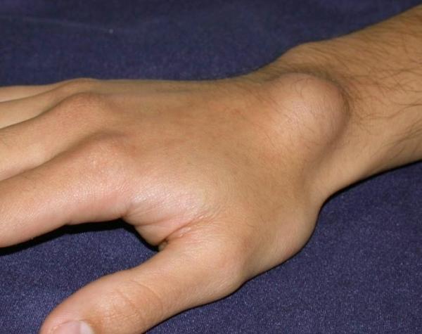 csukló ganglioma kezelés