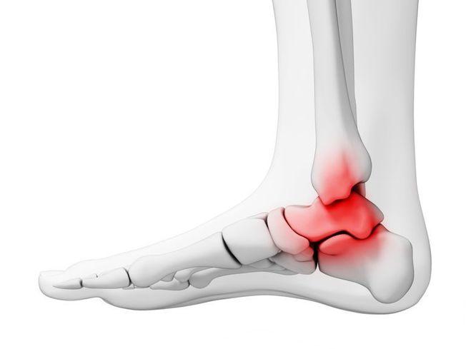 gyógyszer boka osteoarthritis