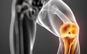 súlyosan gyulladt izmok a lábak kezelése a ii. fokú talus navicularis ízületi arthrosis