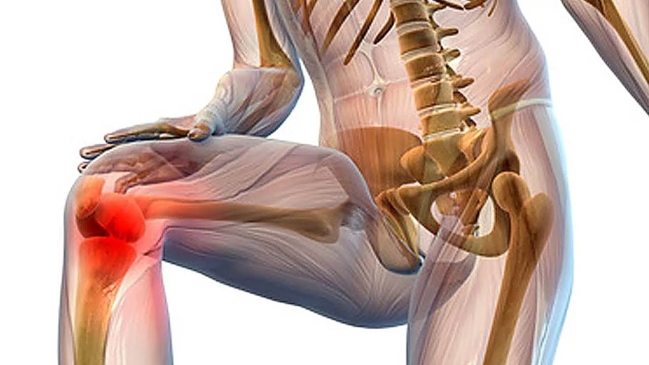 hogyan készítsünk kompresszt ízületi fájdalmakhoz a térdízület deformáló ízületi kezelése 1 fokos