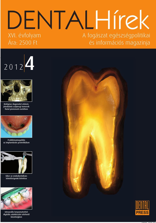Polyarticularis juvenilis chronicus arthritis, seronegativ