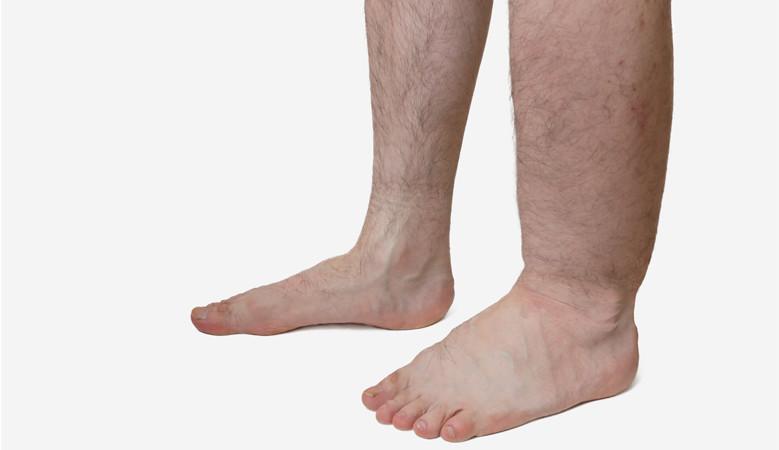 ízületi fájdalom a lábak között