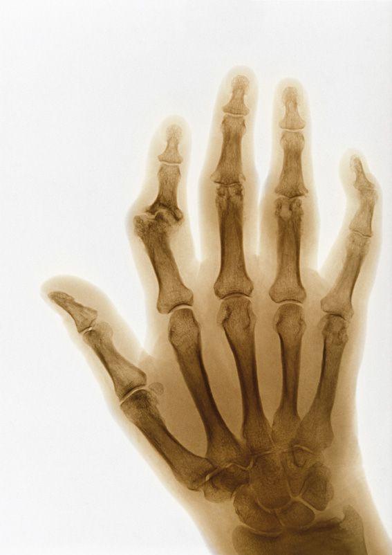 A kis ujj mozgása a kezén: hogyan kell kijavítani? - Homorú-domború lencse July
