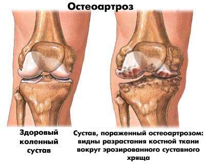 a csípőízület deformáló artrózisa 3 fokkal törés a vállízületben, hogyan lehet csökkenteni a fájdalmat