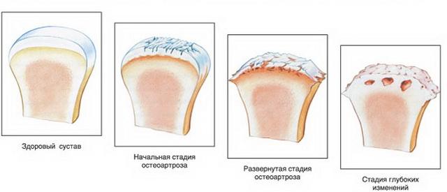 A kezek deformáló arthrosisának helyes kezelése - Sérülések