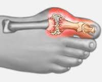 deformáló artrózis a nagy lábujj, hogyan kell kezelni térdízületi duzzanat
