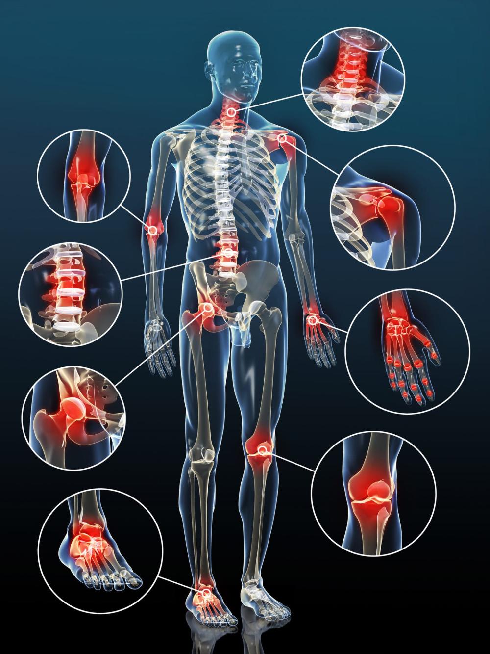 duzzanat és ízületi fájdalmak kezelik az ízületi gyulladást súlyos tartós ízületi fájdalom