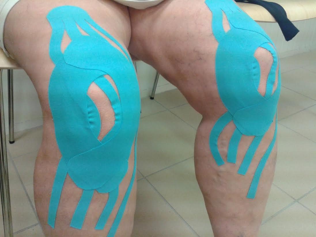 duzzadt térdkezelés deformáló csípőízület osteochondrosis