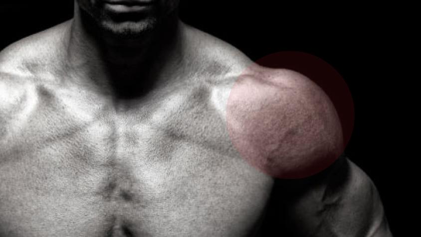 hogyan fáj az izmok és ízületek térdízület kezelési tabletták ízületi gyulladása